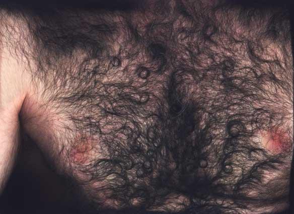 Фото волосатая женская грудь 95457 фотография